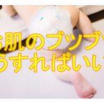 放置してても大丈夫?乳児湿疹の症状と対応方法をご紹介